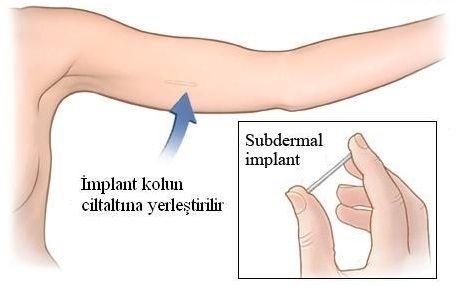 deri altı implant