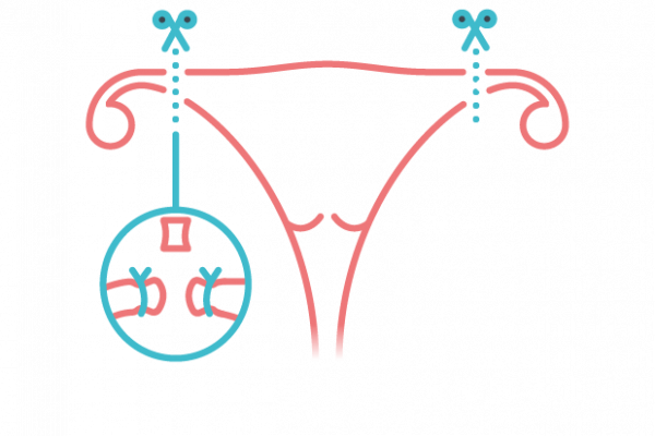 sterilizasyon, tüp bağlama