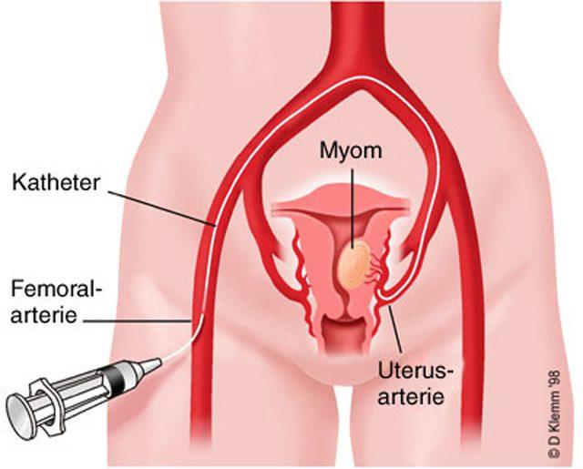 MİYOM - uterin arter embolizasyonu